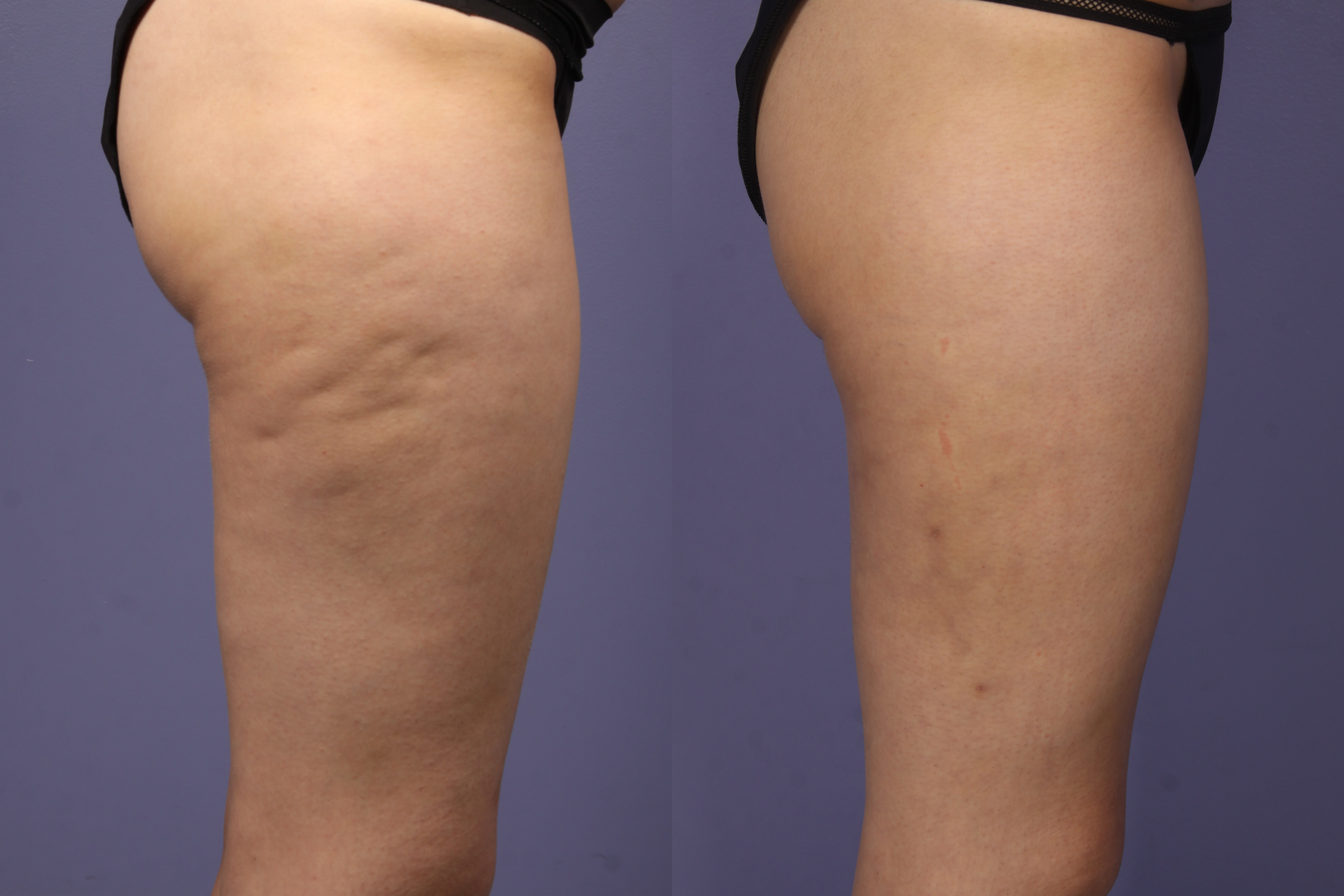 How Do Guys Really Feel About Cellulite
